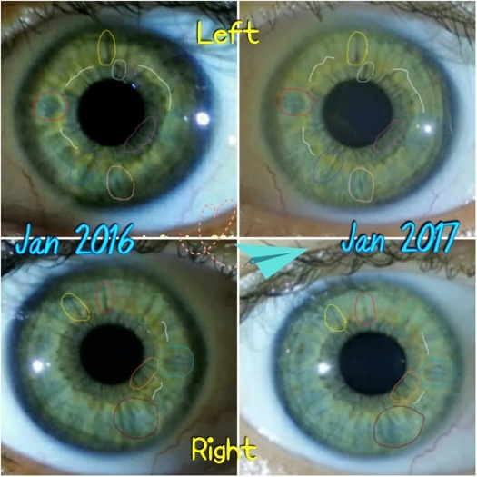 eye_changes_inside1